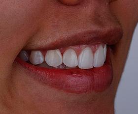 Quer ter um sorriso harmônico? Conheça as facetas de resina!