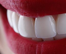A importância da escolha da cor ideal para lentes de contato dental