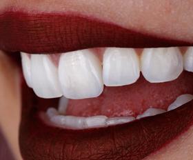 Lente de contato dental. Resina ou Porcelana? Qual escolher?