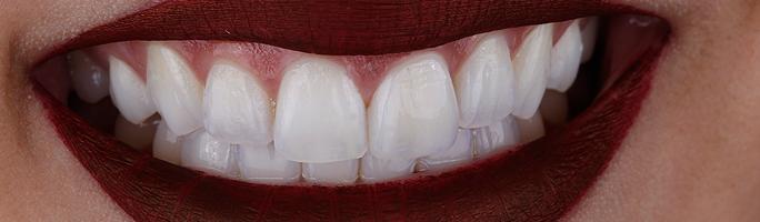 Principais benefícios das Lentes de contato dental em Porcelana.