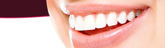 Principais cuidados após colocar as lentes de contato dental