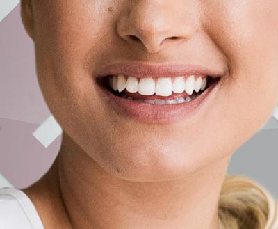 Dicas sobre clareamento dental